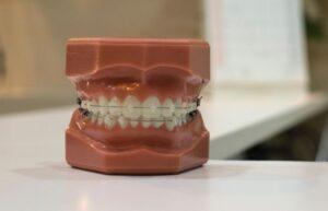 ile kosztuje aparat ortodontyczny