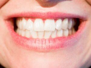 Diastema, czyli przerwa między zębami. Jak ją zlikwidować?