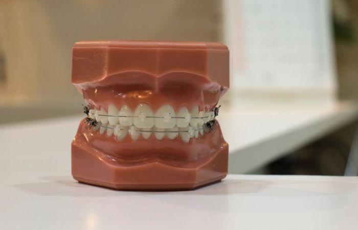 Ile kosztuje aparat ortodontyczny?
