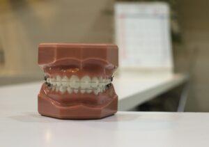 Rożne przykłady aparatów ortodontycznych, tu na modelu szczęki