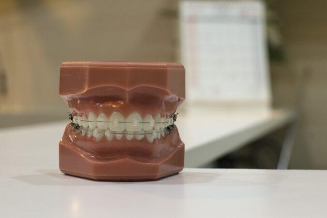 Aparaty na zęby – jakie są rodzaje aparatów?
