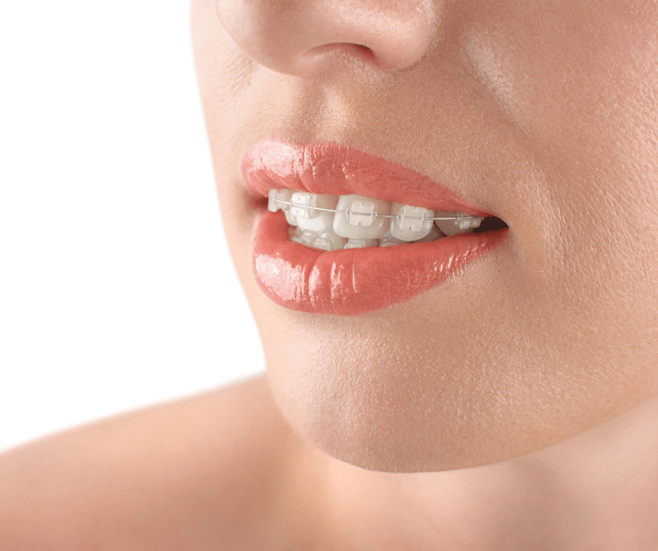 Aparat ceramiczny na zębach – orto-magic.eu