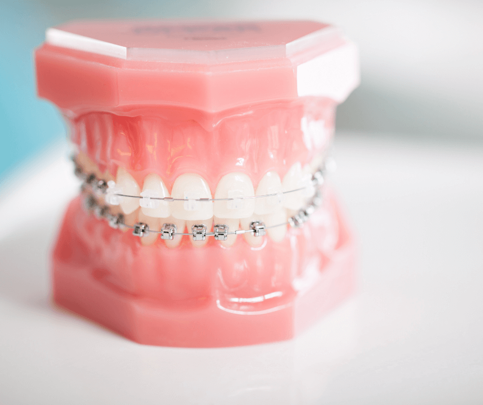 ALT: Porcelanowy aparat na zęby na górnym łuku modelu szczęki