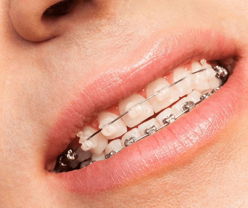 Szafirowy aparat na zęby założony a górny łuk zębowy